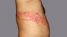 Image of shingles rash on the side of the torso.