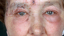 Image of shingles rach on the face.