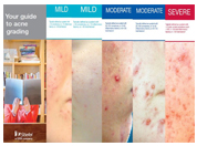 Acne Grading tool for prescribers and dispensers