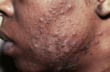clinical presentation_papulopustular acne