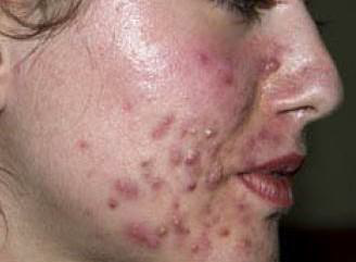 clinical presentation_nodularcystic acne