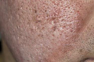 clinical presentation_acne scarring