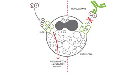 Eosinophilic Asthma