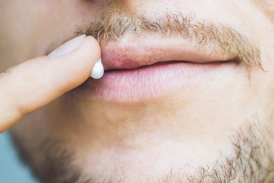 Dudaklarda herpes tedavisi: hekimler tavsiye
